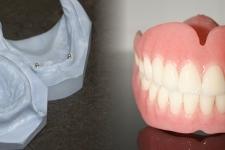 Volledige prothese op drukknop