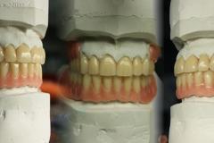Volledige prothese met opgeslepen front
