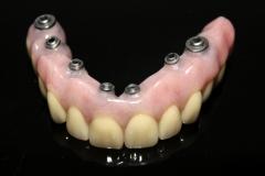 Volledige prothese op 7 implantaten