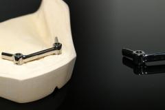 CAD-CAM steg op 2 implantaten